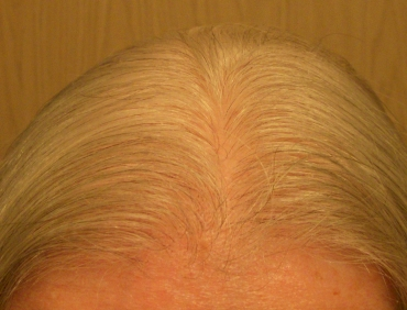 What to Do About Thinning Hair - TIME GOES BY