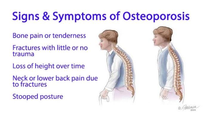 Osteoporosissymptoms